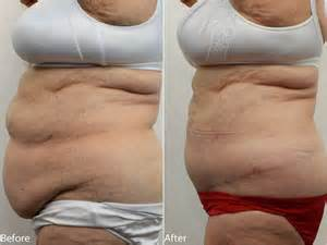 removing stretch marks by surgery picture 3