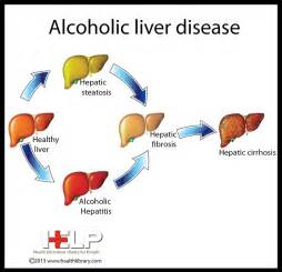 symptoms of alcoholic liver failure picture 10