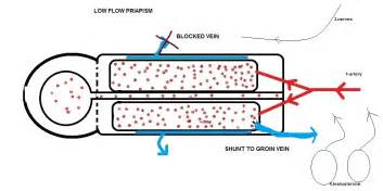 decreased blood flow to genital picture 14
