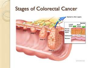 prognosis in stage 4 colon cancer picture 5