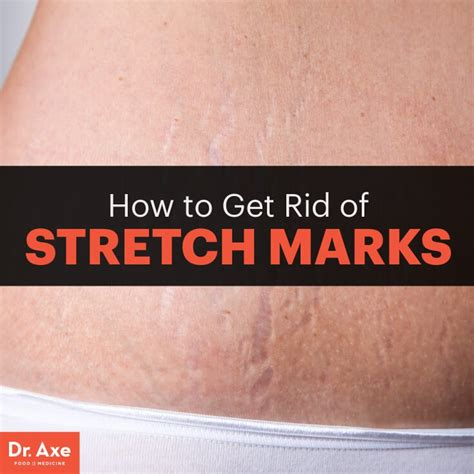 dr. zdinak stretch marks picture 7
