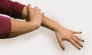 arm and muscle pain picture 7