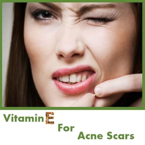 acne and vitamin e picture 13