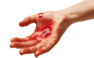 bleeding picture 6