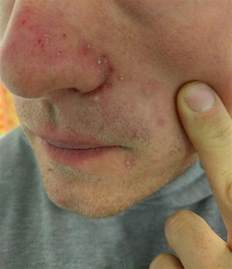 painful acne picture 10