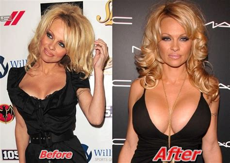 beverly hills breast augmentation picture 5