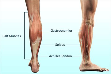 calve muscle tear picture 3