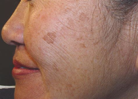 brown patch on skin picture 10
