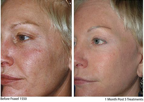 fractal skin procedure picture 19
