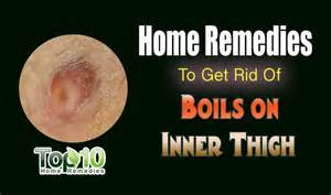 how to get rid of molescus boils ? picture 7