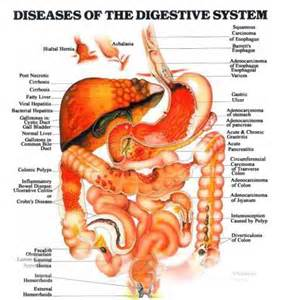 colon health is your colon free from disease picture 10