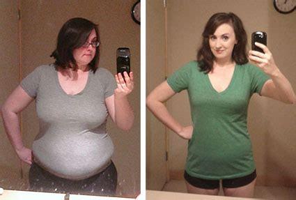 wellbutrin weight gain picture 10