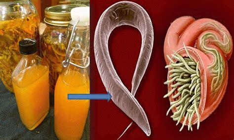 intestinal parasites natural remedy picture 7