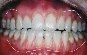 treatment for healthy gums and teeth picture 2