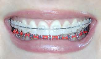 colored braces teeth picture 13