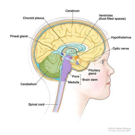 left side of brain bacterial meningitis caused hole picture 5