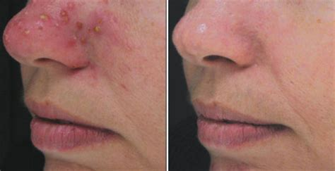 boston doctors that specialize in acne care picture 3