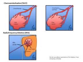 liver damage med net picture 10