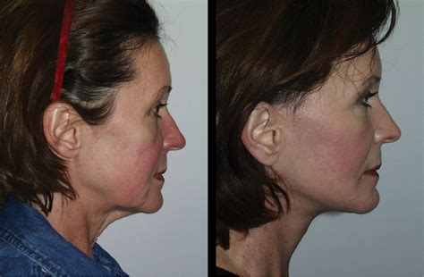 pre face lift skin care line picture 5