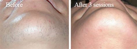 colorado hair removal picture 1
