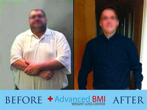 weight loss 6 months after gastric sleeve picture 16