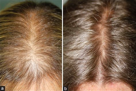 aldactone hair loss picture 10
