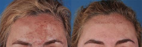 skin care for melasma picture 9
