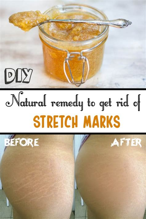 cure for stretch marks picture 1