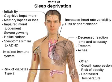 facts on sleep deprivation and reaction time picture 2