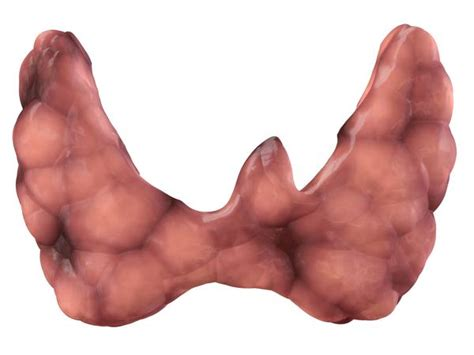 diffusly heterogeneous thyroid parenchyma picture 18