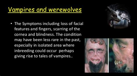 facts about vampire fungus picture 10