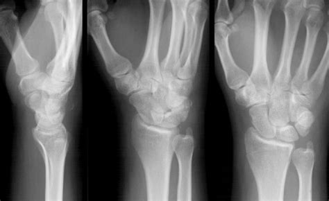 ankle joint effusion picture 19