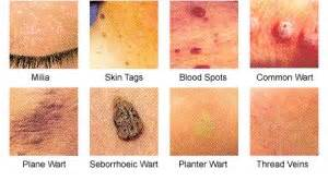 types of warts picture 1