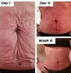 tighten skin after weight loss cream 100% guarantee picture 3