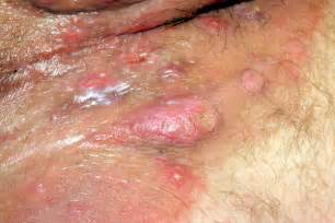 skin boils in the vagina area picture 3