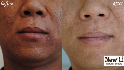herbalist for acne las vegas picture 2