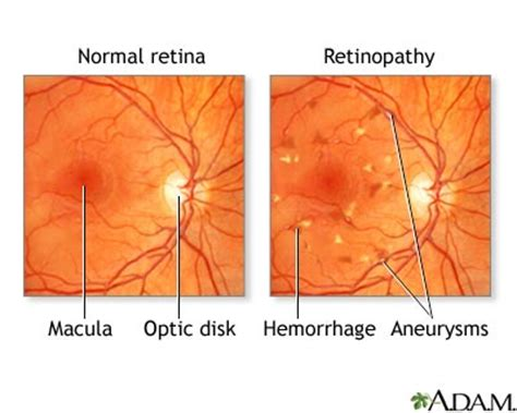 free diabetic retina treatment in chicago illinoise picture 2