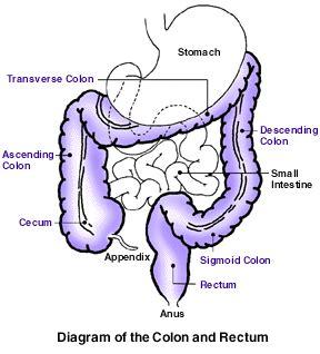 cdc.gov colon cancer picture 5