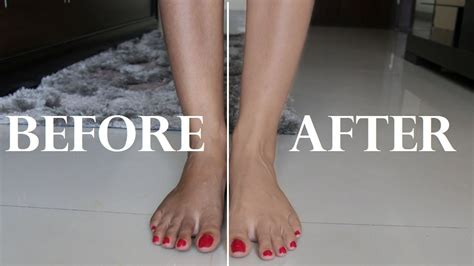 white spot glans after using hair removing cream picture 7