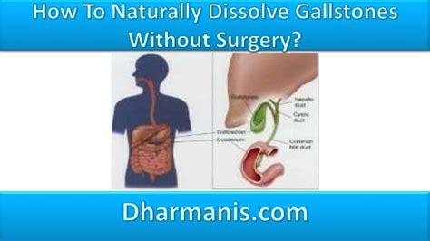 unani medicine for dissolving gall-stones picture 7