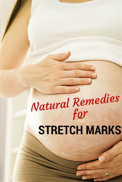 natural remedies for stretch marks picture 9