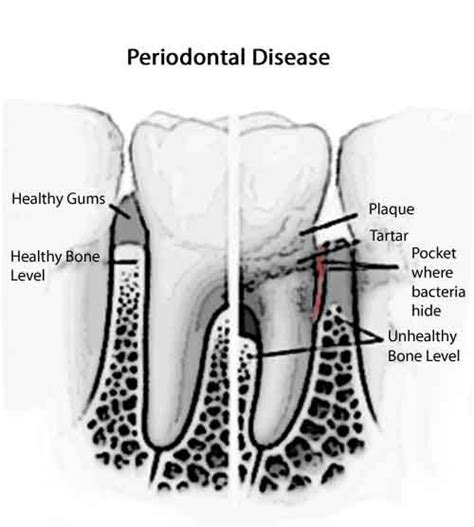 care of teeth pulling picture 6