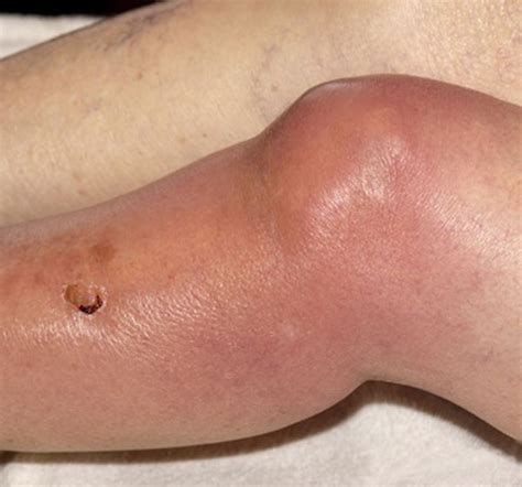 yeast infection in knee joint picture 17