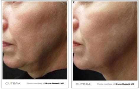 skin tightening treatment the titan picture 1