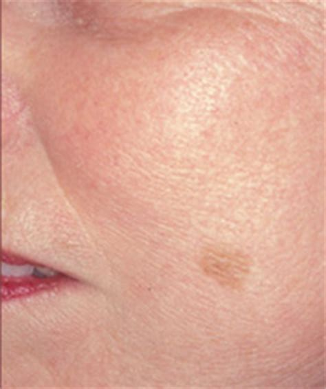 liver problems red spots on skin picture 2