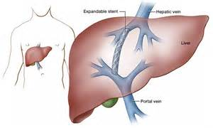 fundamentals of liver transplant icu rn picture 2