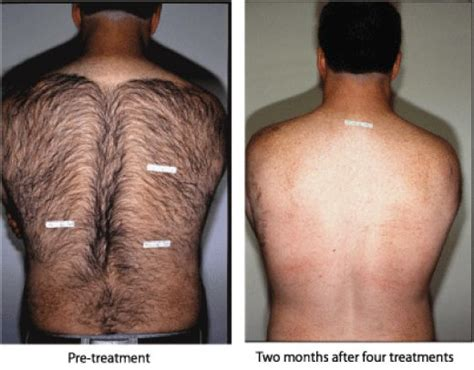 men's hair removal picture 5