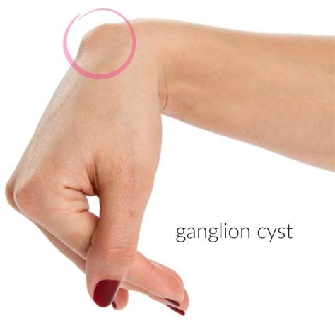 ganglion cyst wrist use thyme oil picture 1