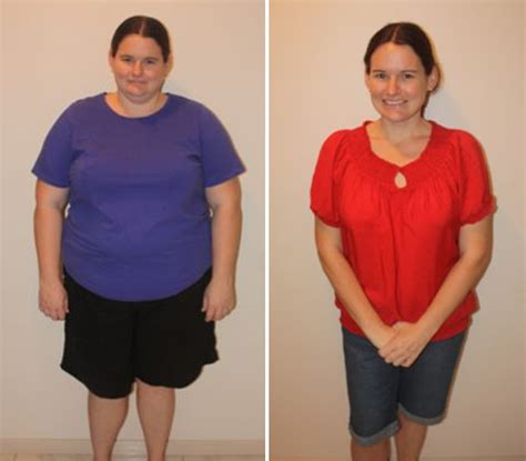 lap band and weight loss picture 2