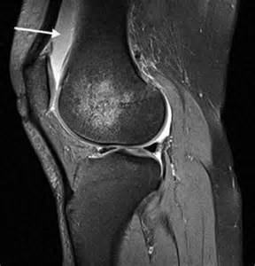 pain relief for suprapatellar joint wffusion picture 14